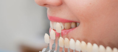 Importance of Dental Implants