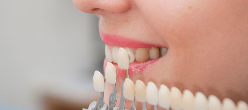 Importance of Dental Implants