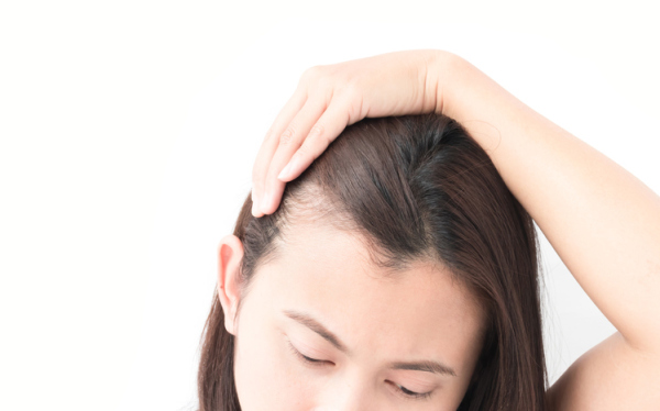 Considerations to Make When Choosing Hair Transplant Clinic