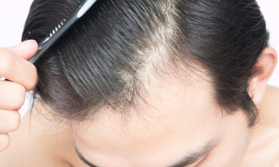 All You Need to Know About a Hair Transplant Practitioner.