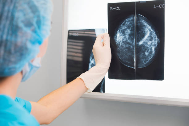 Advantages of 3D Mammography