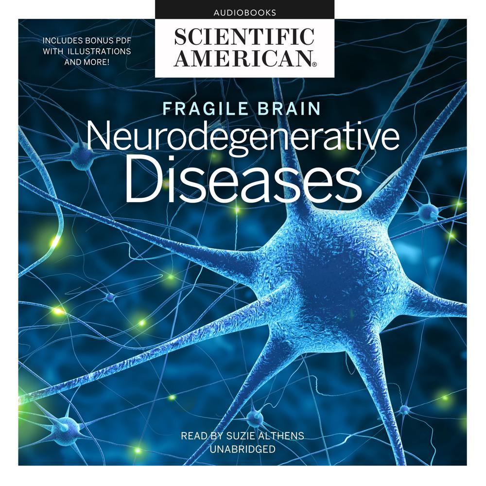 Fragile Brain