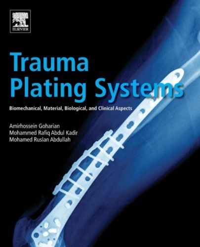 9780128046340 image Trauma Plating Systems
