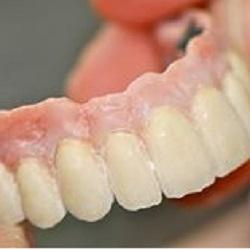 Alliages précieux dentaires