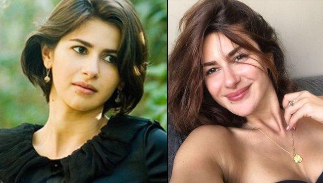 Nesrin Cavadzade sosyal medya hesabından estetik iddialarına nasıl yanıt verdi?