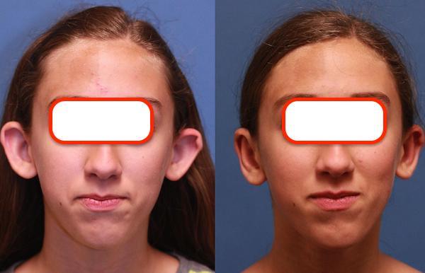 Kepçe kulak ameliyatı önce sonra