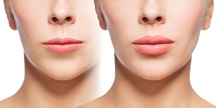 before and after lip filling