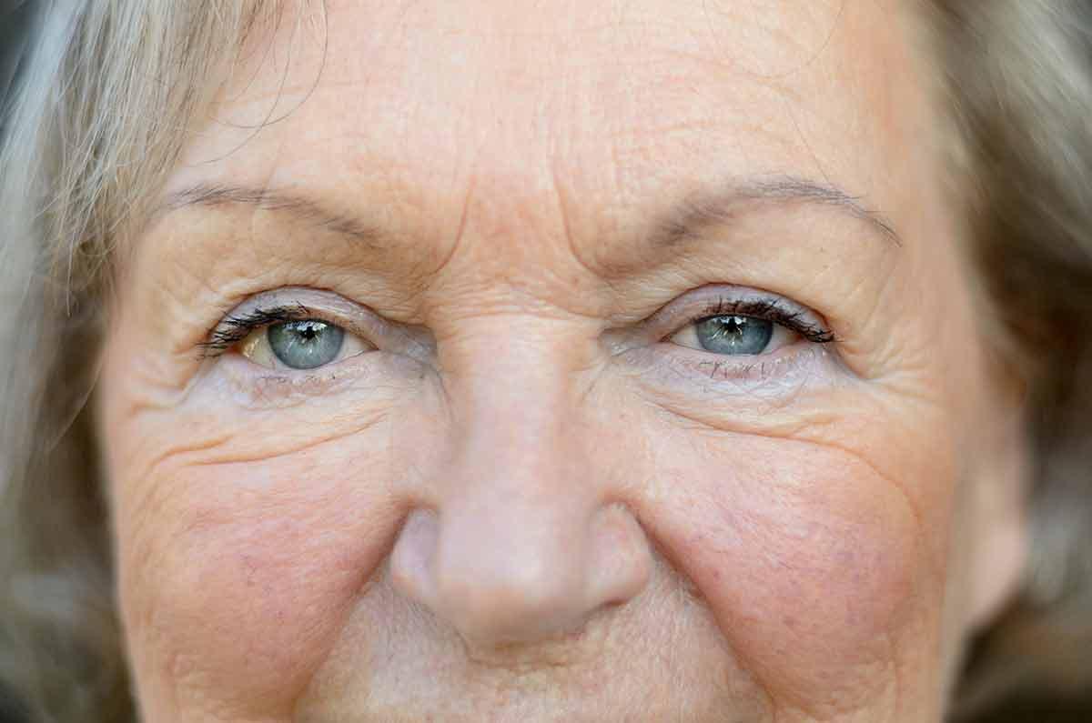 yaşlılarda burun estetiği
