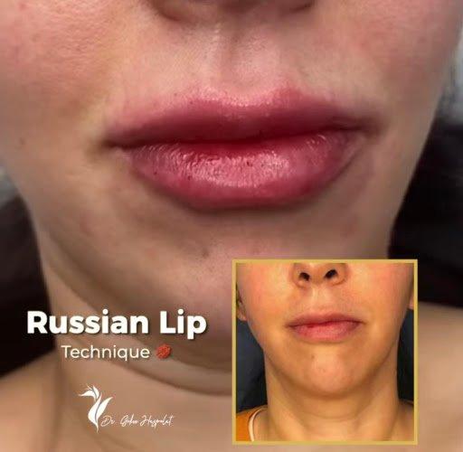 rus dudak dolgusu