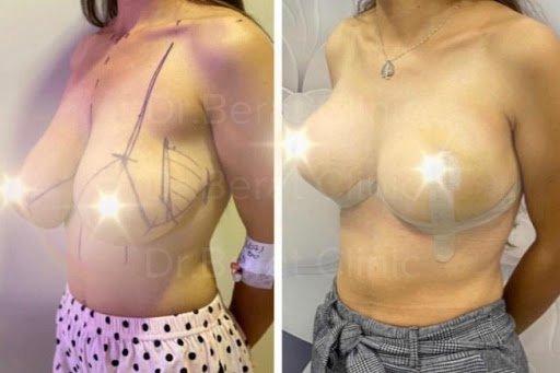 meme küçültme ameliyatı öncesi ve sonrası