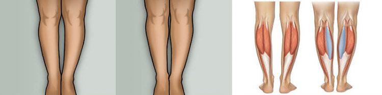 çarpık bacak problemi
