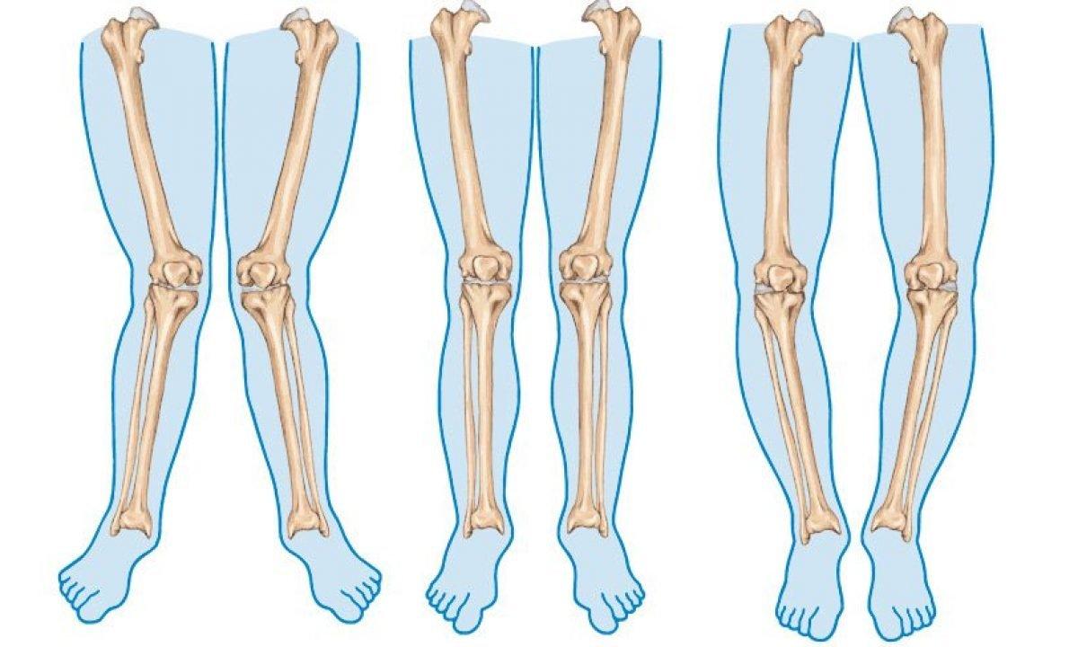 çarpık bacak düzeltme operasyonu