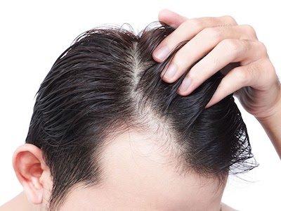 2. kez saç ekimi yapılır mı?