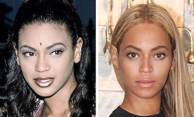 Beyonce estetik öncesi sonrası