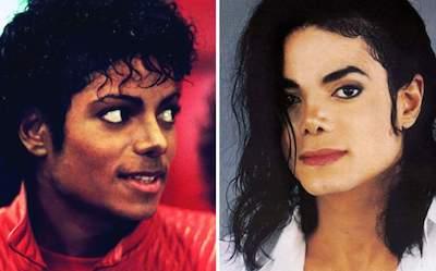 Michael Jackson estetik öncesi sonrasi