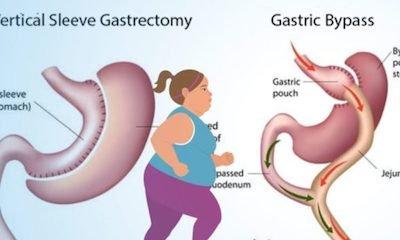 Tüp mide ve gastrik bypass farkı