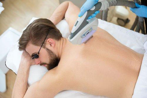 Erkeklerde lazer epilasyon zararlı mı