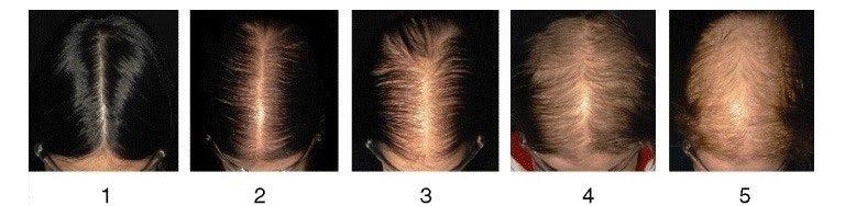 saç ekim süreci