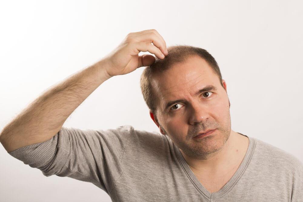 saç ekimi sonrası kaşıntı problemi