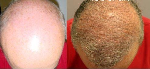 erkek saç ekimi öncesi sonrası fotoğrafları