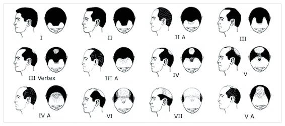 saç ekimi planlaması
