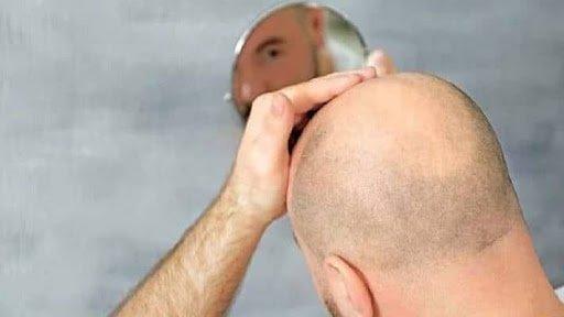 saç dökülmesi sonucu