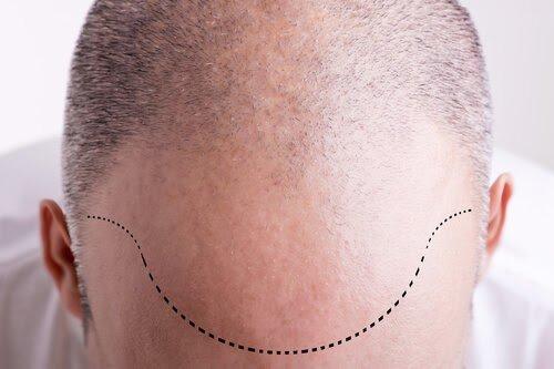 saç çizgisi