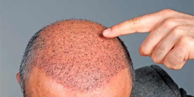 saç ekimi sonrası kabuklanma