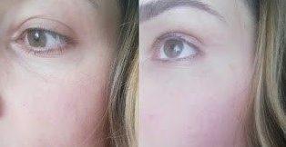 Göz Altı Işık Dolgusu Yaptıranlar, Yorumları; Yan Etkileri ve Öncesi Sonrası Görüntüleri