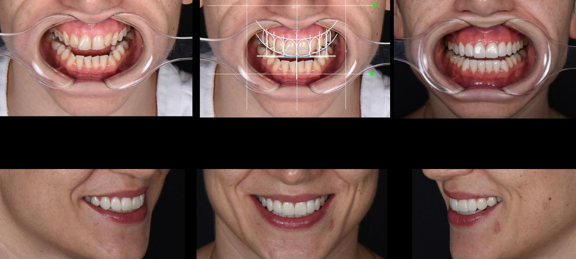 Gülüş Tasarımı Nasıl Yapılır?