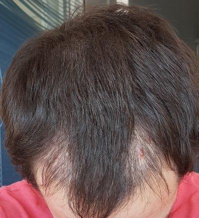 31 Yaşında - 2100 Greft ve ilk günden itibaren 368. güne kadar fotoğraflarla birlikte saç ekimi sürecim