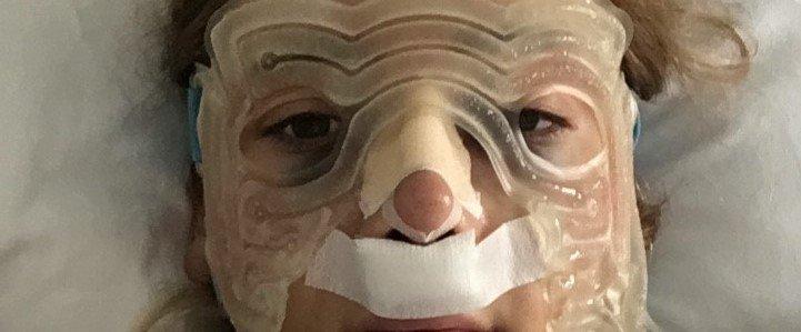 Burun Estetiği Ameliyatım