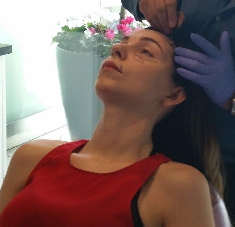 Botoks Ve Göz Altı Dolgusu Deneyimim