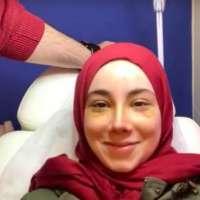 Ameliyat sonrası ilk haftada şişken bile burnum çok güzeldi
