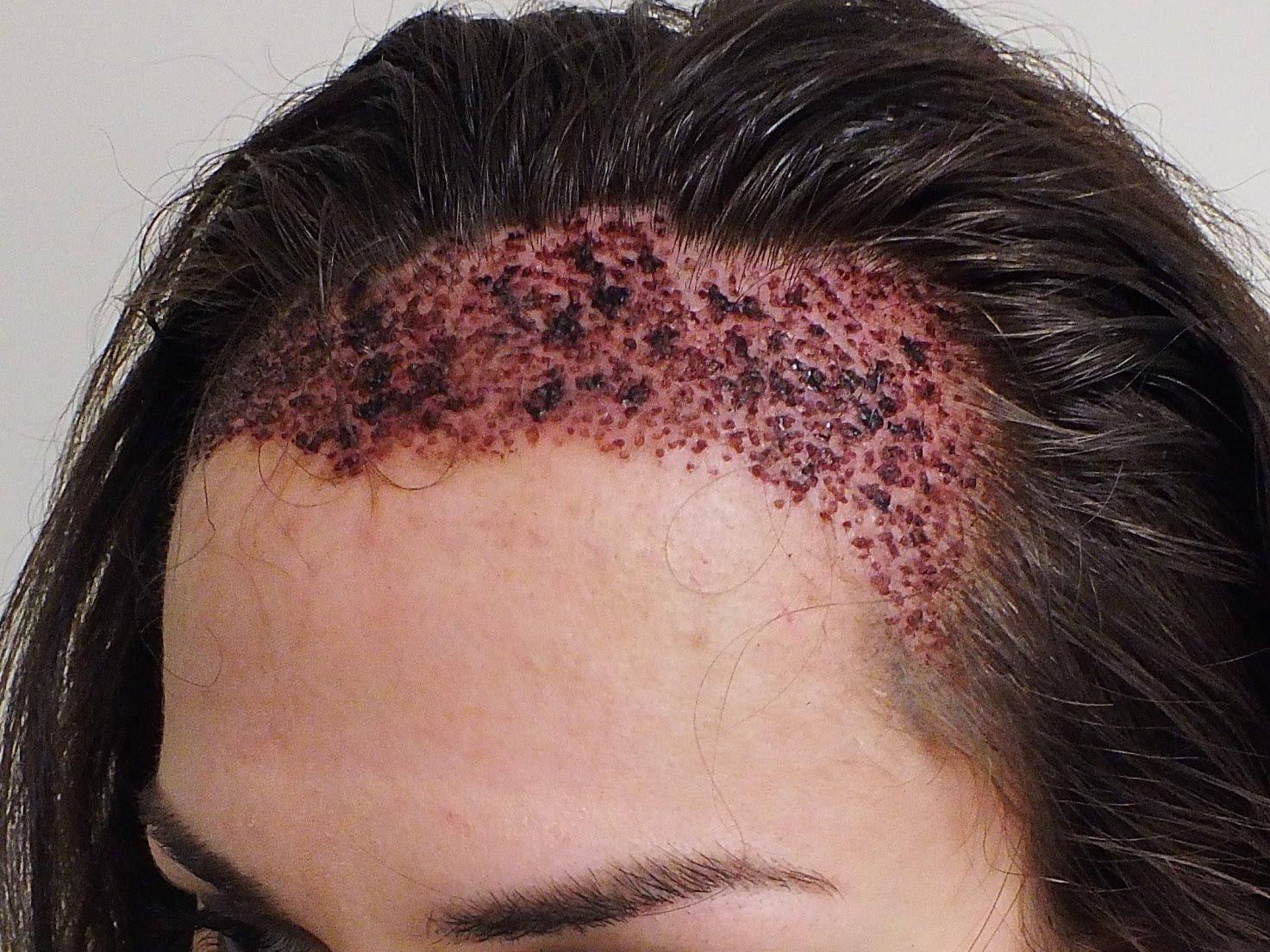 Kadınlarda saç ekimi sonrası görüntü
