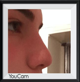 Benim sıkıntım burnumun kalkık olmaması Fotoğraf