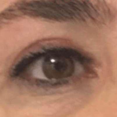 Göz Kapağı Estetiği sonucum ve doktorum Gülay Boztosun'a sonsuz teşekkürler