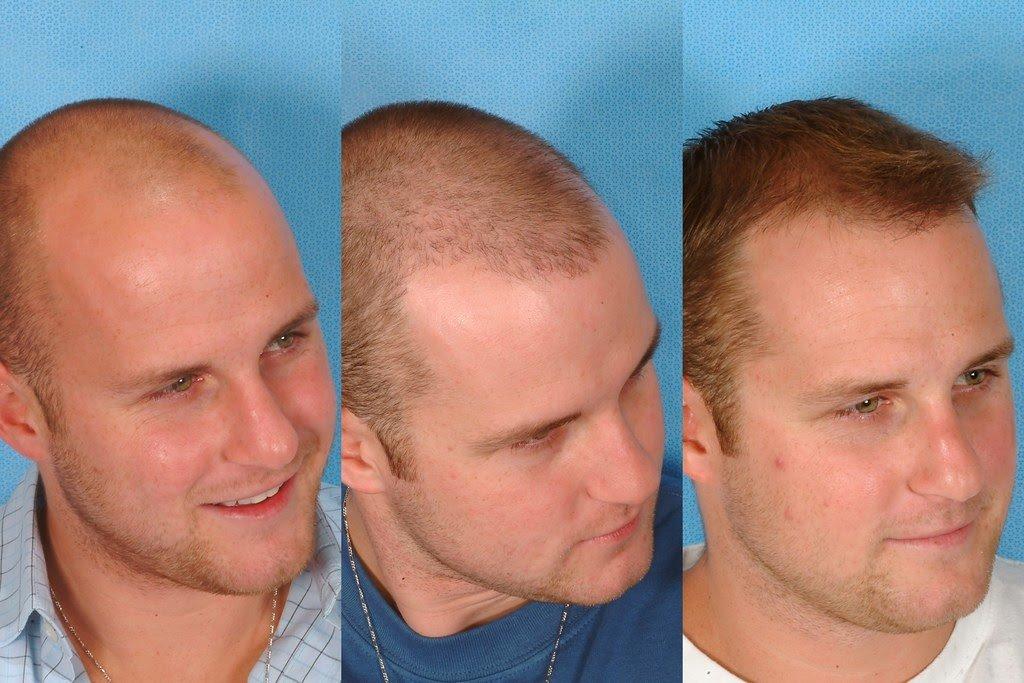 Erkeklerde Saç Ekimi Öncesi Ve Sonrası Fotoğrafları -4-