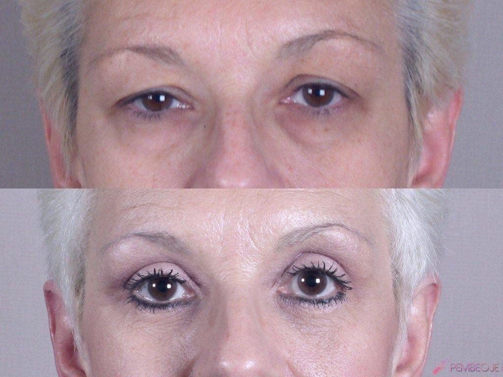 göz kapağı düşüklüğü ameliyatı