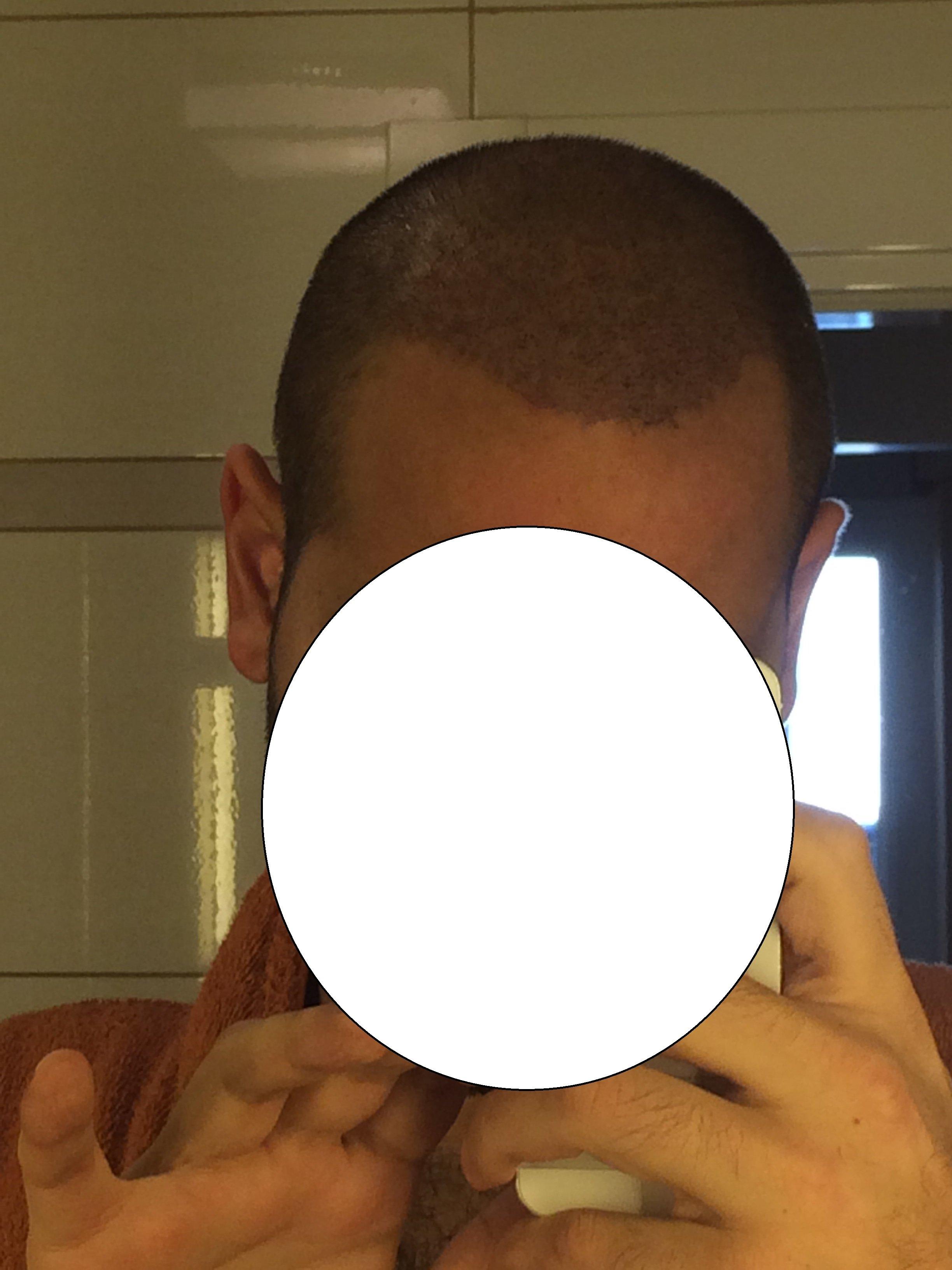 Saç Ekimi ihtiyacım için 1 yıl sonunda doğru adresi buldum ve sonuç harika oldu çok memnunum. Yorum sizin.