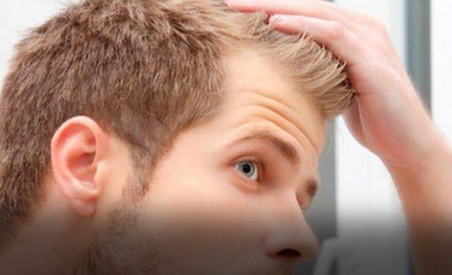 saç ekimi öncesi hazırlık