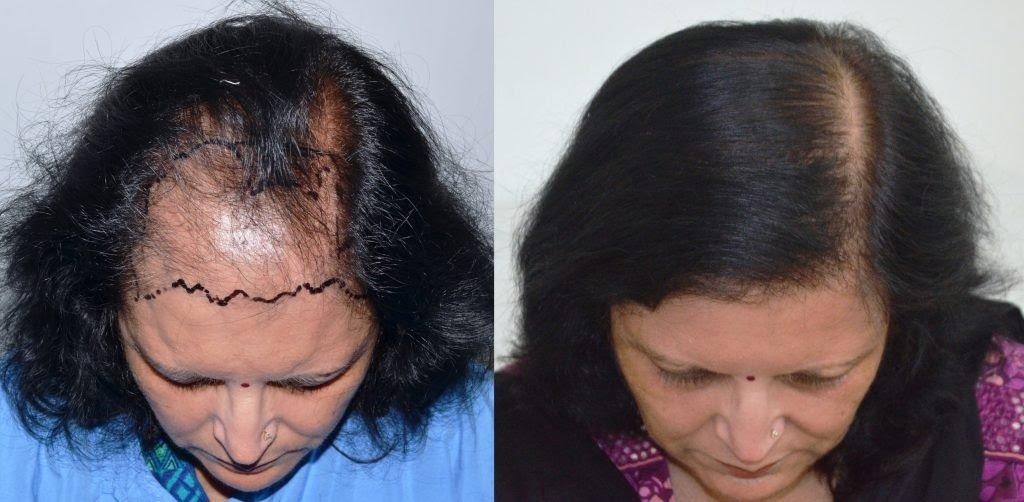 Bayanlarda saç ekimi öncesi ve sonrası görüntü