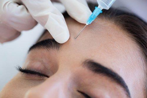 Botox application