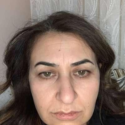 Botoks yaptırdım Mevlüt Bey'e, Türkiye'de ilk defa böylesi güleryüzlü bir klinikle karşılaştım