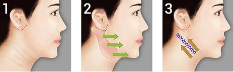 Boyun Germe Ameliyatı Nasıl Yapılır