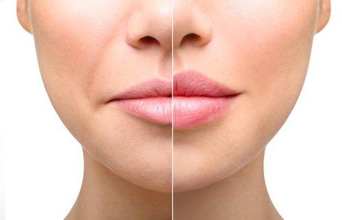 dudak dolgusu nasıl yapılır?