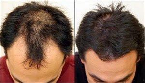 saç ekimi öncesi sonrası fotoğraflar