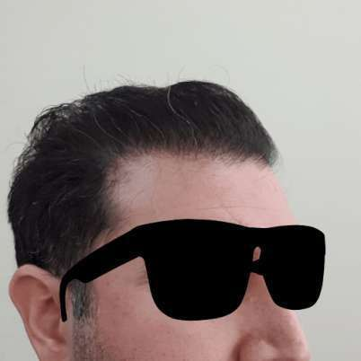 Hermest Hair Clinic En İyi Saç Ekim Merkezi