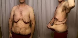 tip mide ameliyatı