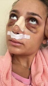 Burun Estetiği Ameliyatım Fotoğraf